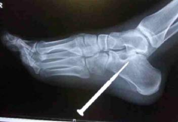 Puncture wound to foot